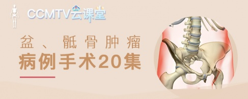盆,骶骨腫瘤病例手術20集