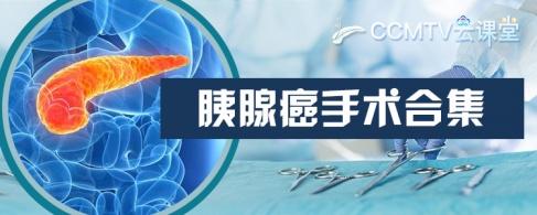 胰腺癌手術合集