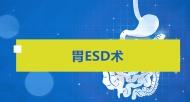消化道疾病 外科 手术     胃ESD术