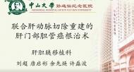 肝门部胆管癌 肝动脉 刘超:联合肝动脉切除重建肝门部胆管癌根治术