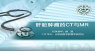 肝脏肿瘤 CT MR 柳澄:肝脏肿瘤的CT与MR
