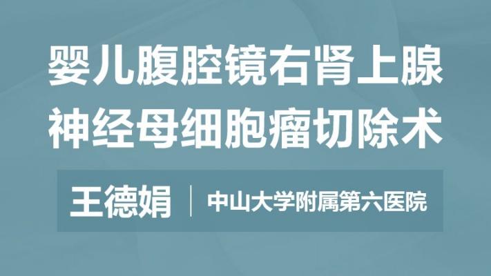 王德娟:婴儿腹腔镜右肾上腺神经母细胞瘤切除术
