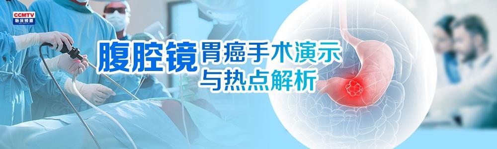 腹腔镜胃癌手术