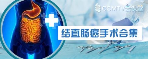 结直肠癌手术合集